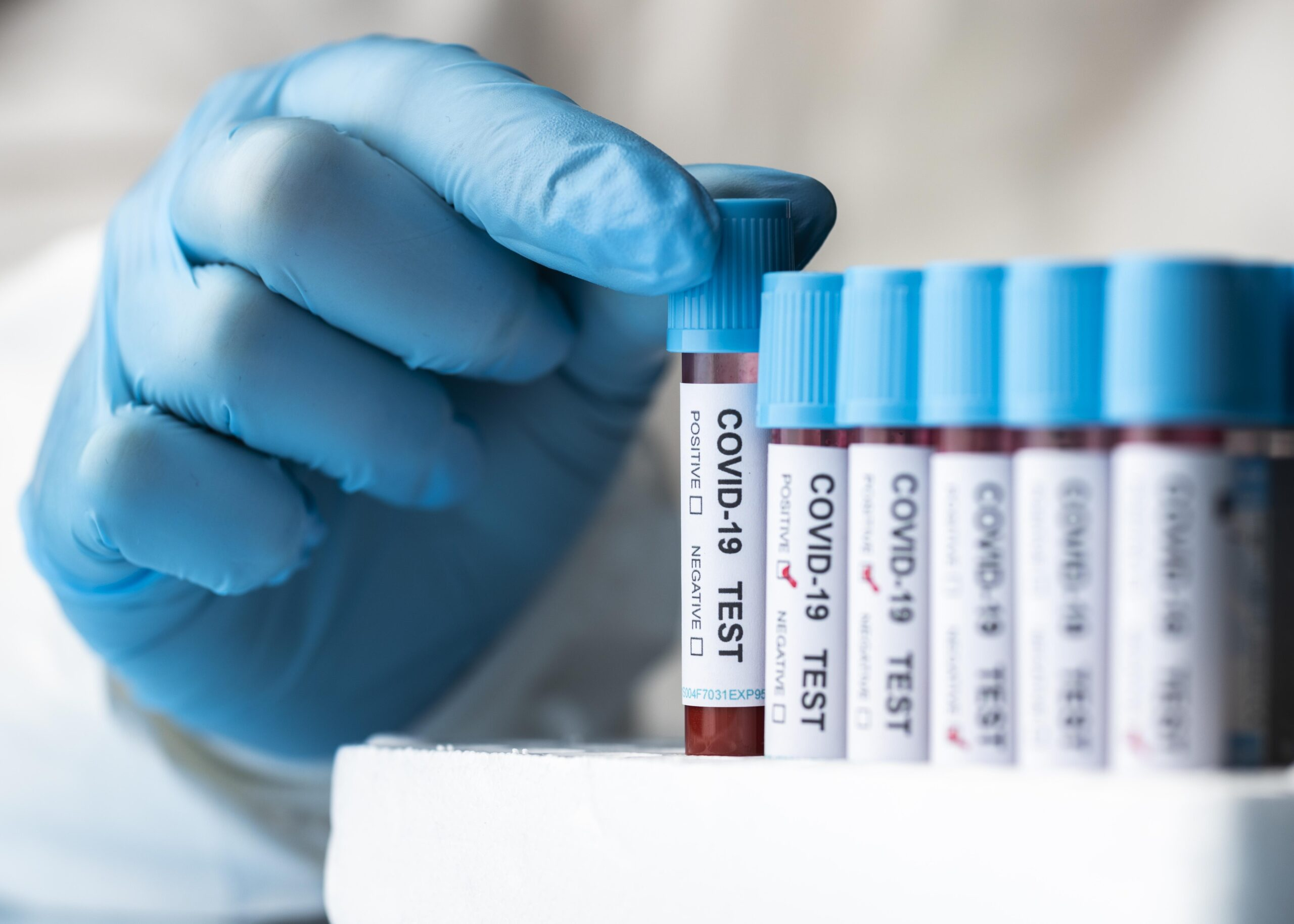covid test coronavirus contagi